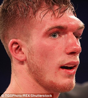 Nick 32969BC600000578-3513208-Nick_Blackwell_is_in_a_coma_in_hospital_after_sustaining_brain_i-a-6_1459257952978